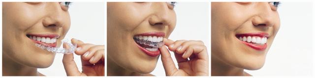 invisalign dentist sydney