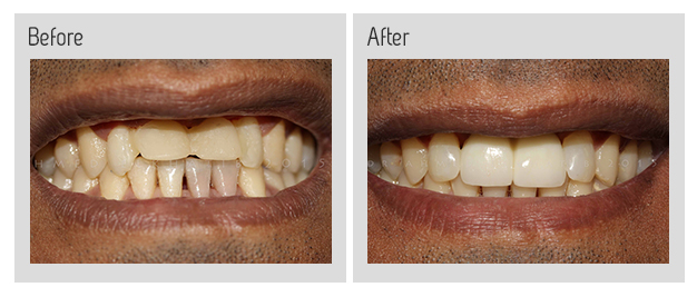 Implants and veneers before and after