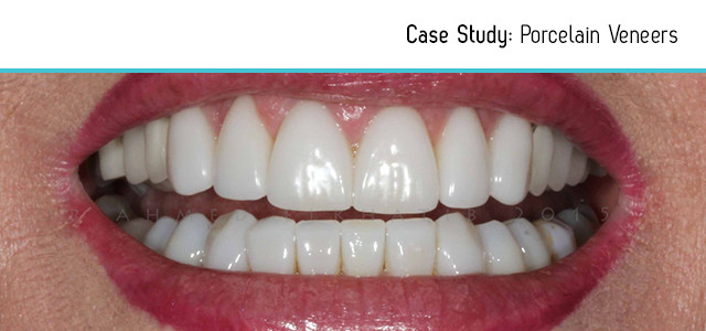 before-after-lower-veneers-2