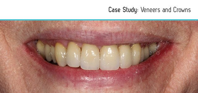 before-after-veneers-2
