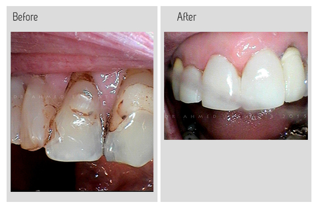 Composite veneers before and after