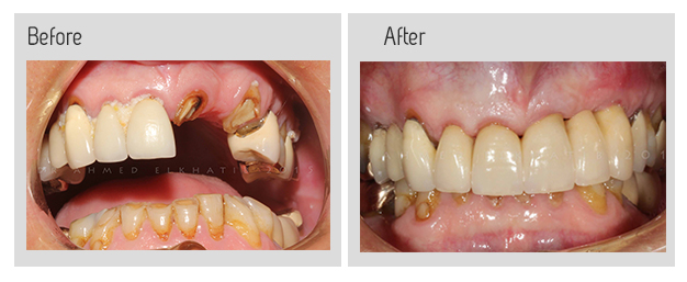 Crowns and dental bridges before and after