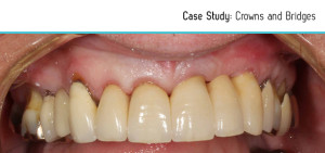 crowns-bridges-before-after