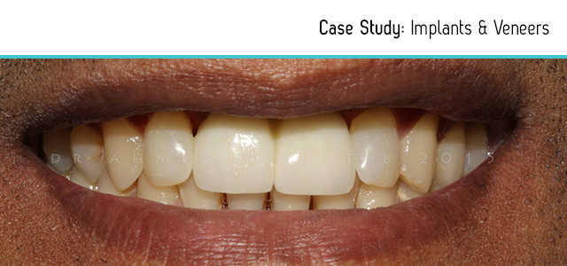 before-after-implants-veneers-2