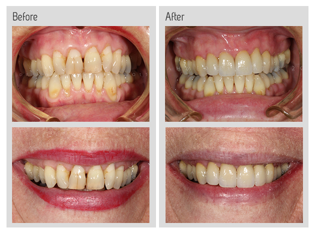 Dental crowns and veneers before and after