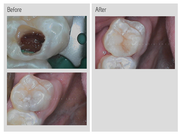 Root canal procedure photos